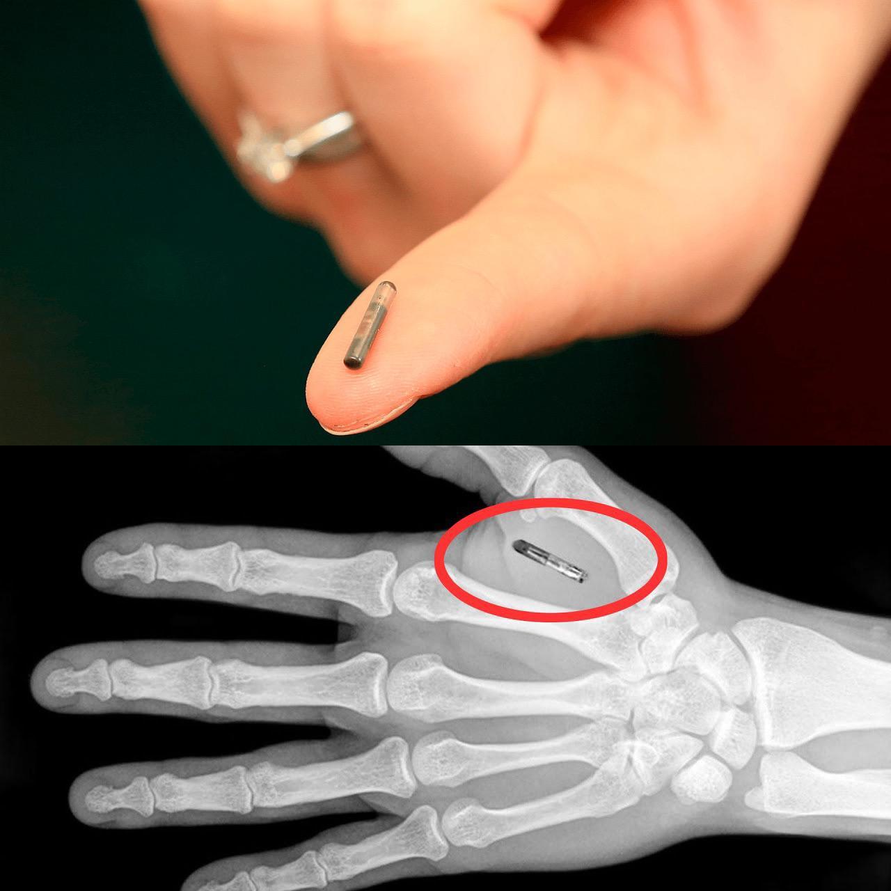 Microchip Humano