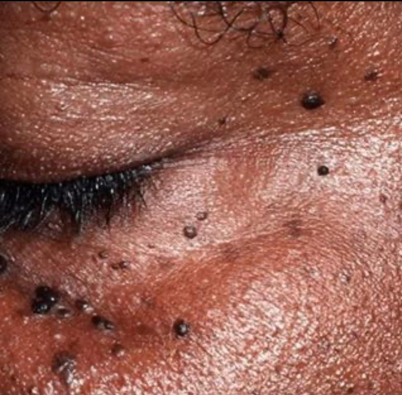 A importância da limpeza de pele