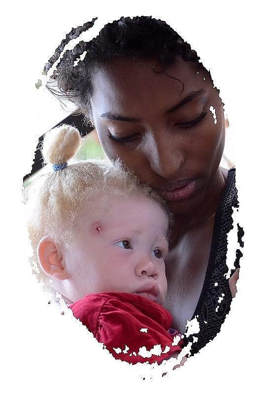 """Selma, a """"fada"""" dos albinos em Angola"""