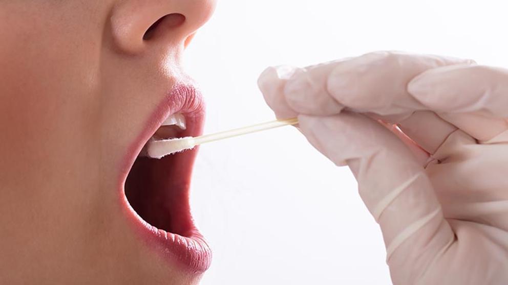 Dificuldade para engolir e manchas brancas na boca podem ser sintomas de Cancro da cabeça e do pescoço